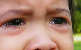 Điều trị sưng mí mắt ở trẻ em